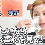 【保存版】肌荒れ、ニキビ、赤みに悩んでる人はこれをしてみて!
