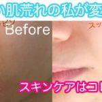 【これ1つ】ひどい肌荒れ&乾燥肌の私を変えてくれた!簡単シンプルなスキンケアアイテムとおすすめの使い方紹介【敏感肌 / ニキビ / トラブル / 保湿 / 化粧水 / 化粧品 / 方法】