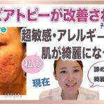 【ニキビ・アレルギーが治った本当の話】超敏感肌の山田が今の肌になるまでに行った事!肌が敏感な方、アレルギーがある方へ知って欲しい話