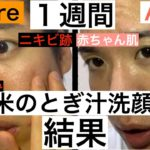 【検証】ニキビ跡が治る!?米のとぎ汁洗顔1週間した結果!