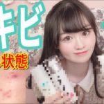【ニキビ】高校生の肌荒れしてる時のスキンケア方法!