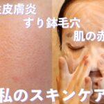 脂漏性皮膚炎、すり鉢毛穴、ニキビ肌の私のスキンケア(肌の赤みが改善したスキンケア商品をご紹介します)