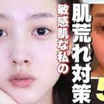【ニキビ】敏感肌の肌荒れ対策5つの方法『スキンケア革命』