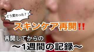 【肌荒れ】スキンケア再開!!お肌の変化は!?
